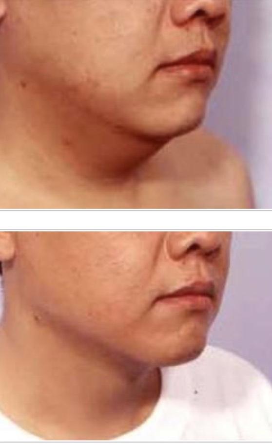 奇妙的精緻抽脂術,重塑V型臉!