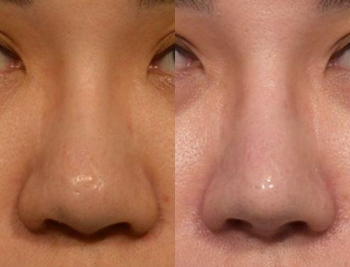美鼻的條件之三 -- 鼻頭