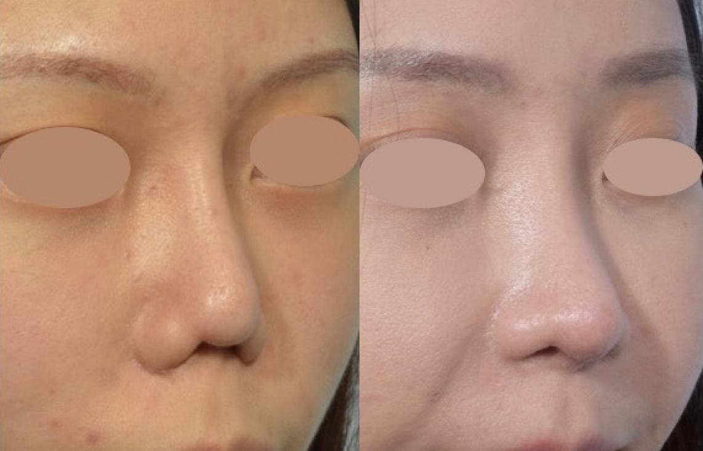 結構式鼻整形的威力