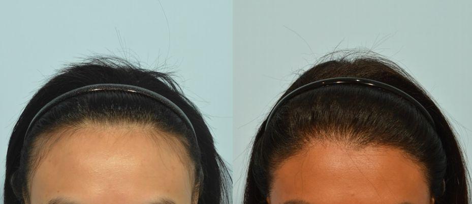 女性髮際線的威力 悄悄改變你的日常