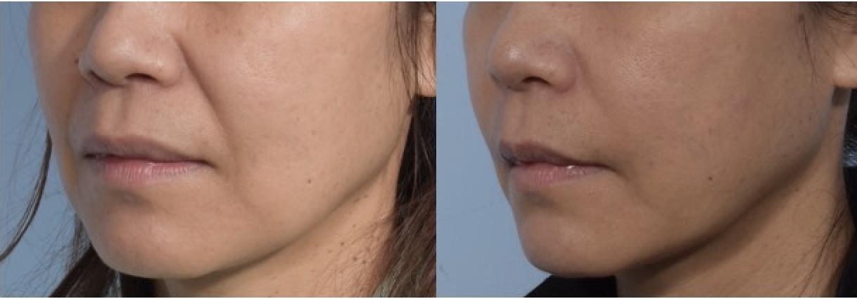 《對抗臉部鬆弛下垂,除了拉皮之外還有CP值更高的選擇!》 ———-不用拉皮的緊緻效果