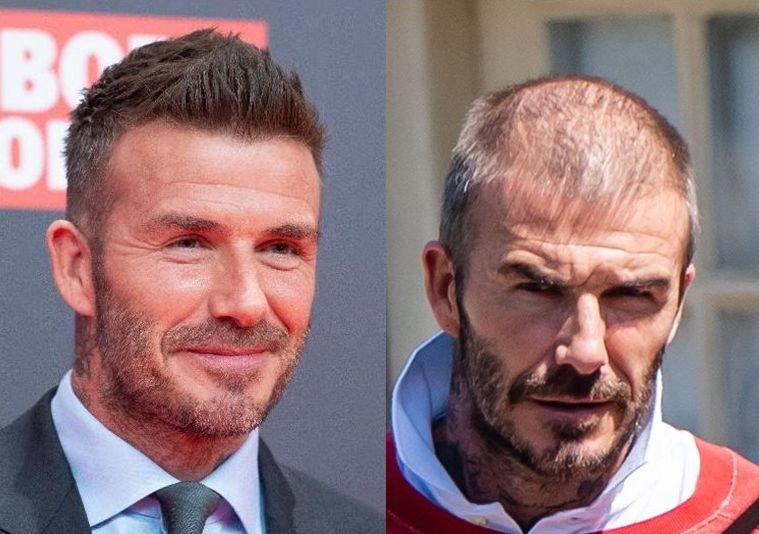 「從貝克漢頭髮的今昔,談護髮與植髮」