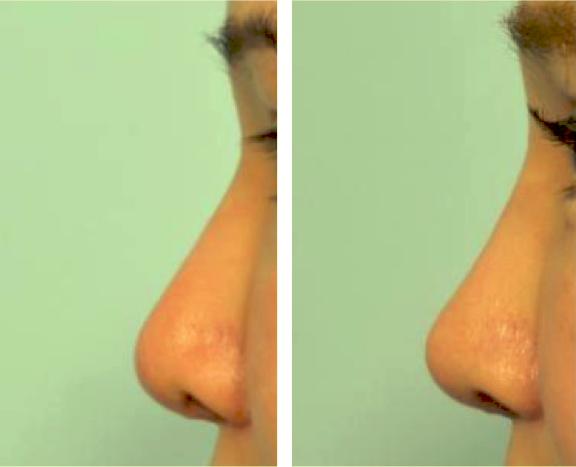 美鼻條件之一---山根眉心高度