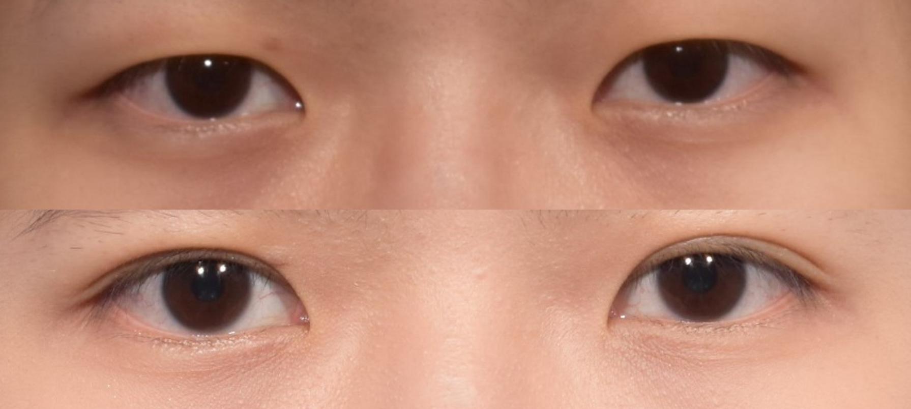告別想睡單眼皮! 到底雙眼皮用「割的」還是「縫的」好呢?