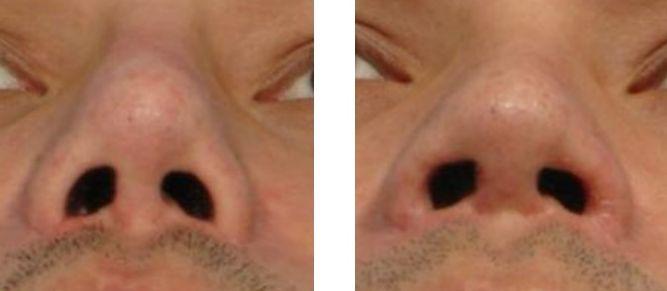 如果之前鼻翼切太小,有任何改善方法嗎?