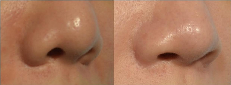 縮鼻翼會有疤痕嗎? 有疤痕怎麼辦?
